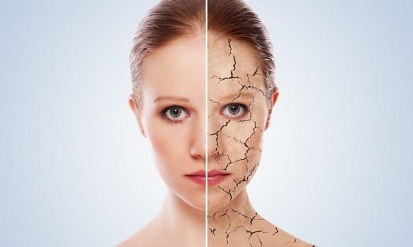 Iwostin Sensitia für eine empfindliche und allergische Haut, ein linderndes und reinigendes Gesichtstonic